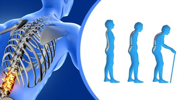 Tratament alternativ pentru osteoporoza