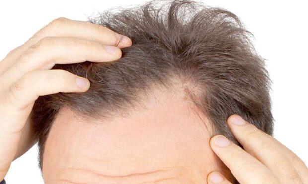 Clinica Dr. Felix Hair Implant te ajuta sa iti recapeti podoaba capilara